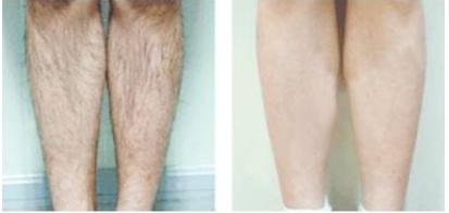 郑州第一人民医院整形外科美容脱毛多少钱 激光脱腿毛价格