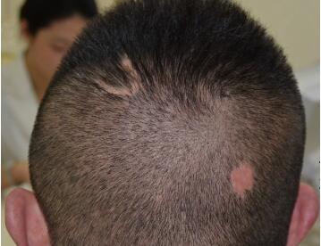西安植发价格表  西安雍禾植发医院疤痕植发的费用贵不贵