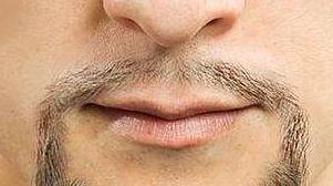 广州碧莲盛无痕植发医院胡须种植的步骤 胡须种植注意事项