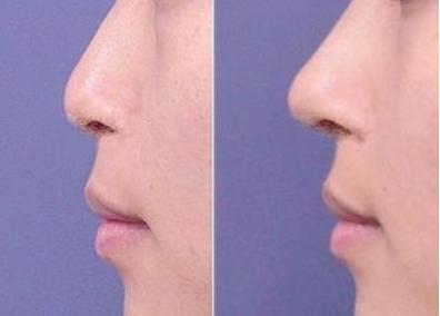 长沙温宏整形医院鼻子整形对比图 <font color=red>自体软骨隆鼻</font>价格
