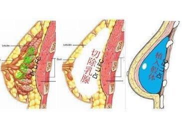 烟台京韩整形医院乳房再造术的效果怎么样  安全性高吗