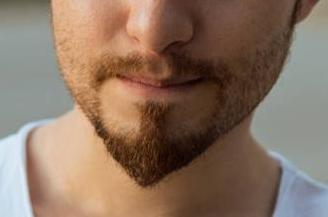 厦门新生植发整形胡须种植的费用怎么算  胡须种植的护理