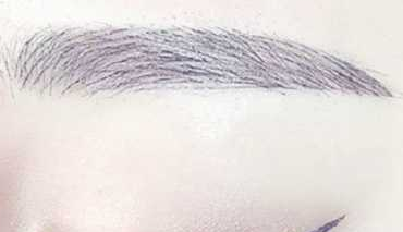 徐州有美毛发移植整形眉毛种植效果好吗 眉毛种植护理