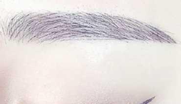 徐州有美毛发移植整形<font color=red>眉毛种植效果</font>好吗 眉毛种植护理