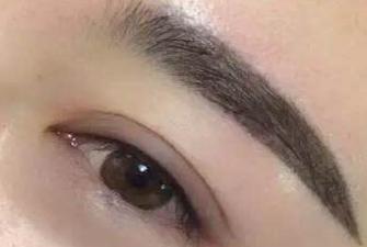 眉毛种植的方法哪种较好 云南玛丽亚整形医院眉毛种植护理