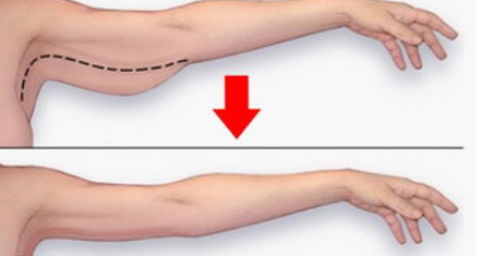 衡阳中心医院整形科胳膊吸脂减肥多少钱 术后皮肤会松弛吗
