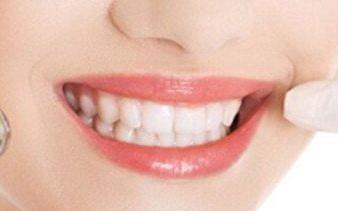 预防地包天的方法 太原华美口腔医院地包天矫正有后遗症吗