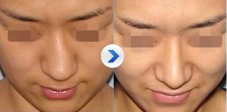 歪鼻有哪些危害 长沙三和整形医院做鼻矫正贵吗