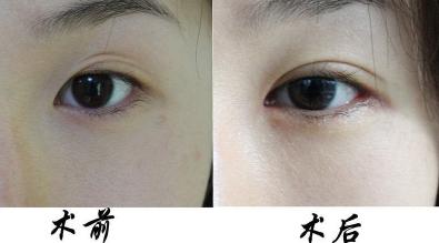 双眼皮失败了什么时候能修复 修复双眼皮多少钱