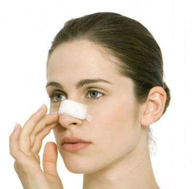 呼伦贝尔人民医院自体软骨隆鼻手术的价格 手术有无风险