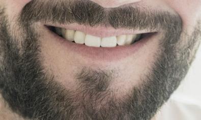 胡须不够浓密如何解决 昆明碧莲盛植发整形可以种植胡须吗