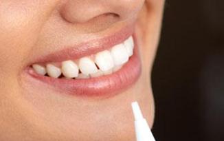 烤瓷牙会有哪些副作用 南昌爱思特口腔医院烤瓷牙有几种