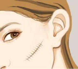 潍坊华美整形医院激光祛疤效果好不好  哪些人群适合呢