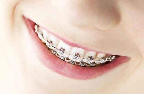 沧州枫华医疗整形医院做牙齿矫正有哪些价格影响