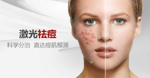 湛江东盟整形医院激光祛痘效果怎么样 痘痘肌从此消失了