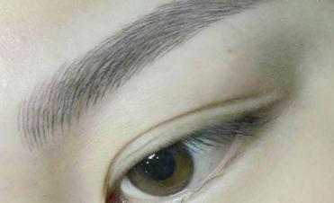 眉毛种植能看到效果 南宁雍禾植发整形医院眉毛种植好吗