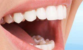 做种植牙有没有年龄限制 上海康态口腔门诊部<font color=red>种植牙优点</font>