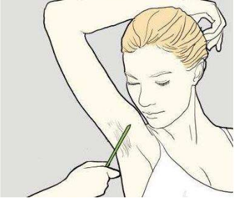 临沂泉美整形医院激光腋下脱毛的效果怎么样 需要做几次