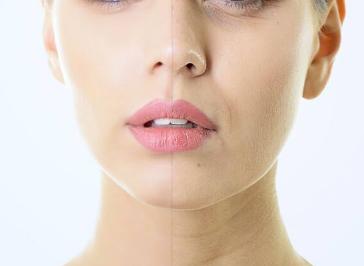 德州做激光除皱医院哪家好 激光除皱适用于哪些皱纹的治疗