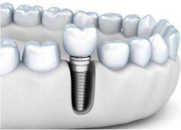 宿迁口腔医院整形科种植牙的优点 有哪些后遗症呢