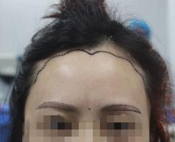武汉美基元整形医院植发怎么样 美人尖种植有哪些优势