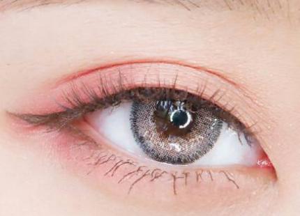 北京割双眼皮费用是多少 全切双眼皮增生期是多久