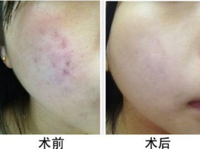 中山博爱医院激光科激光去痘疤多少钱 多久可以恢复