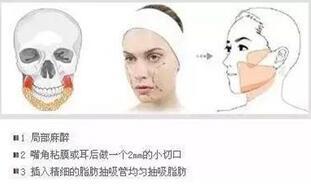 厦门修志夫做面部吸脂价格 大概需要4000-10000元