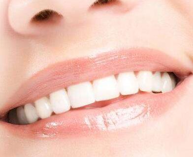 为什么选择美容冠矫正牙齿 厦门思明峰煜口腔医院怎么样