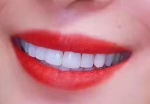 保定牙博士口腔医院正规吗 好的烤瓷牙多少钱