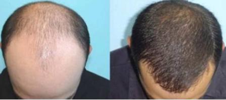 青岛雍禾植发整形医院植发的优势 多久能见效果