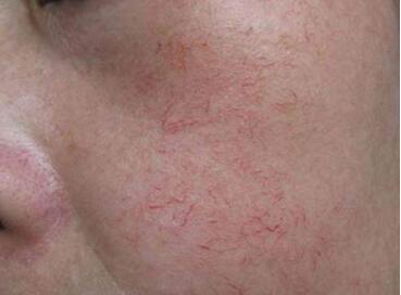 烟台鹏爱整形医院激光去红血丝优势 会不会伤害皮肤