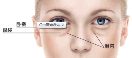 石家庄超声波去眼袋多少钱 效果能维持多久