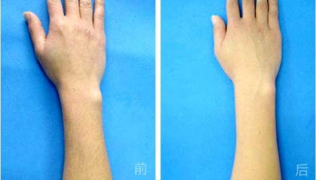 深圳美源整形医院永久脱毛的价格 激光脱毛优点