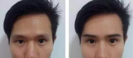 上海华美植发整形医院植眉毛一般要多少钱 多久能看见效果