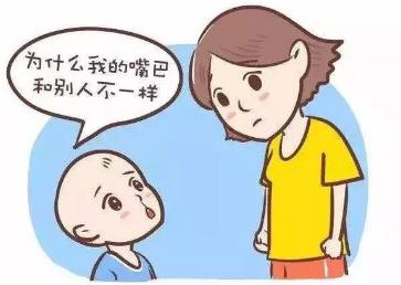 婴儿唇裂修复的时机 北京唇裂修复多少钱