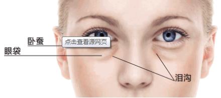 眼袋是怎么形成的 激光去眼袋好不好