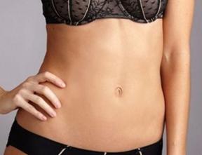 腰腹部吸脂需要分几次进行 亳州华美整形医院吸脂好吗