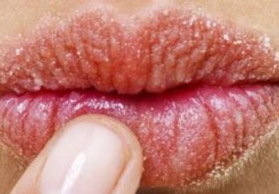 唇裂修复种类有哪些 宁波明州整形医院唇裂修复好吗