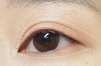 双眼皮失败修复什么时候做 太原星范整形双眼皮修复费用
