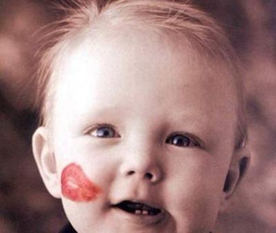 重庆中山医院整形科唇裂修复几岁做比较好 效果好吗