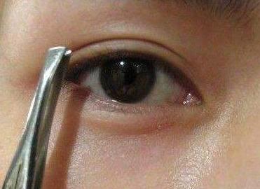 修复失败双眼皮方法 宁波韩美做双眼皮修复多少钱