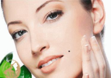 武汉米兰整形医院激光祛痣有哪些优势 会损害皮肤吗