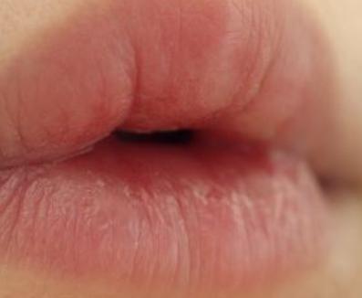漂唇会有伤痕吗 深圳光明整形医院漂唇手术疼吗