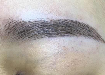 眉毛变浓密的方法 厦门碧莲盛植发整形医院眉毛种植的优点