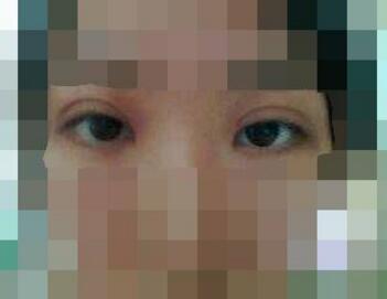 衡阳雅美整形医院双眼皮修复效果怎么样 还你青春靓丽