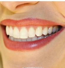 种植手术有风险吗 安徽韩美口腔美容整形医院种植牙寿命