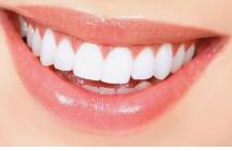 畸形牙矫正恢复时间 北京瑞鲨口腔门诊部畸形牙矫正优点