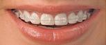 北京冠美口腔医院做过<font color=red>烤瓷牙</font>还能做牙齿矫正吗