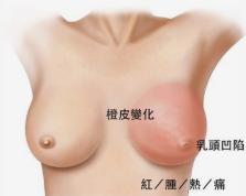 的乳头乳晕形态北京安仁医院整形乳头内陷的矫正